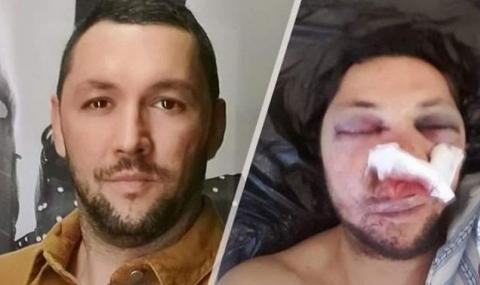 Пребит журналист: Как хванаха нападателите на Слави Ангелов, а моите - не