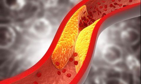 Симптомите, по които да разпознаем високия холестерол