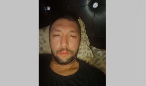Отново нападнаха Стоян Тончев
