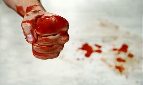 ДАЗД разследва жесток побой над 3-годишно дете