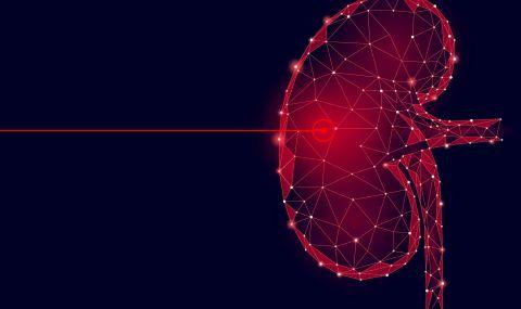 Безкръвни лазерни операции на най-високо ниво у нас (ВИДЕО)