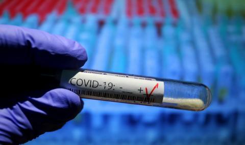 27 заразени с COVID-19 в италиански клуб