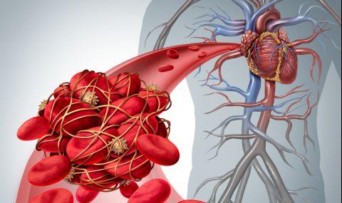 3 вредни храни отключват тромбозата