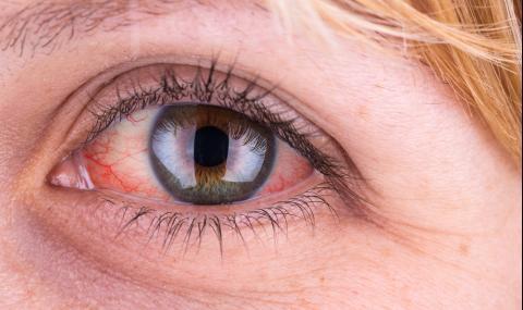 Kръвоизлив в окото може да е симптом на...