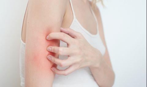 Видите ли това по кожата си, значи сте заразени с коронавирус