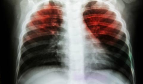 Туберкулозата в България изчезва