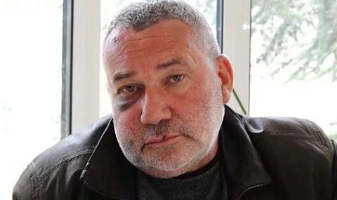 Прокуратурата разследва побой над кмета на каварненско село Белгун - не контролирал вота