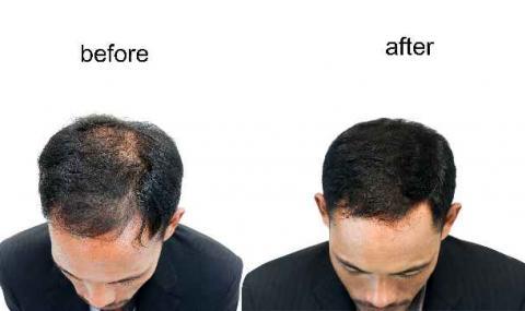 Пробив в борбата с оплешивяването, лекарство стимулира растежа на нови косми
