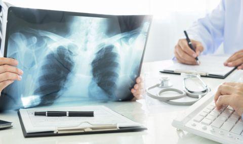 Скритите признаци на рак на белия дроб