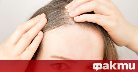 Ранното побеляване на косата не е признак на общо стареене