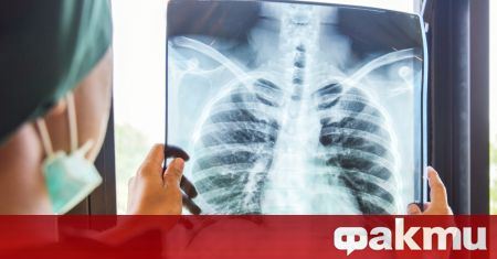 В ранните стадии ракът на белия дроб обикновено не се