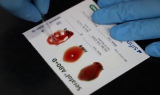 Правят 100 PCR теста в съседни на Изгрев села