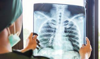 Лесен тест показва имате ли рак на белия дроб