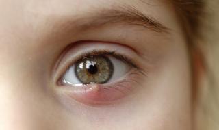 Как да се отървем от ечемик на окото?