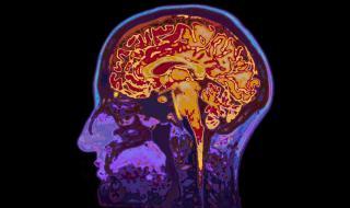 Тези храни вредят на мозъка ви