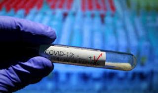 Над 80 заразени в София за денонощие