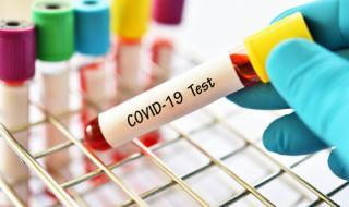 Ето кои са заразените с Covid-19 в Добрич