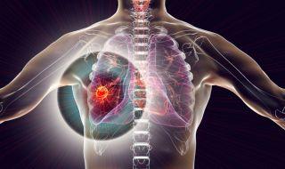 Първи сигнали за рак на белия дроб