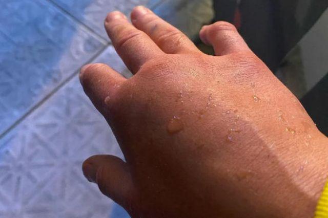 Атрактивна британска боксьорка игра пет рунда със счупена ръка