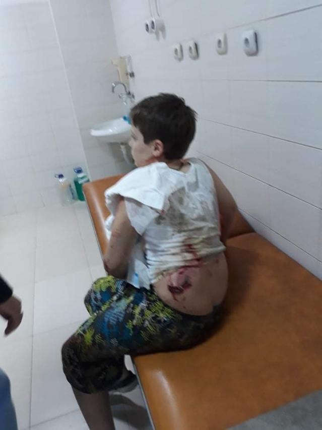 50-килограмово Кане корсо нахапа малко дете (СНИМКИ 18+)
