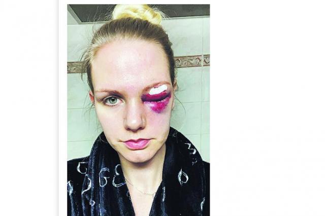 26-годишна баскетболистка едва не загуби окото си след мач