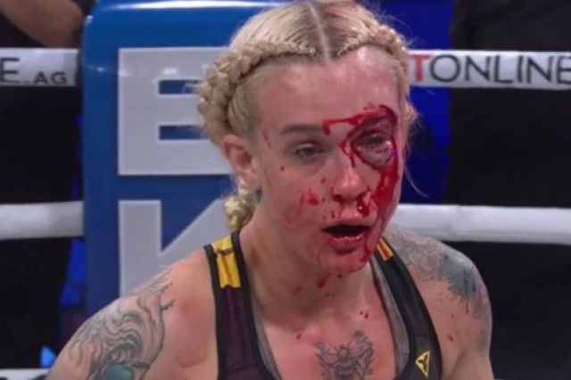 Брутално агресивен мач завърши с около 500 удара (ВИДЕО)
