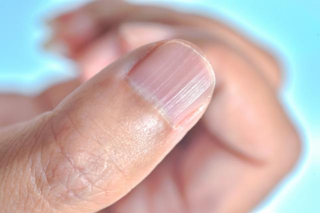 За какви заболявания говорят линиите и трапчинките по ноктите