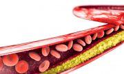 Това са нормалните нива на холестерола според пол и възраст