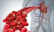 Фармацевт: Ако седите 4 часа при пътуване, пак може да развиете тромби