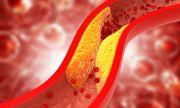 Симптоми на висок холестерол, които лесно се забелязват