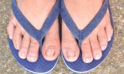 Гъбичките по ноктите са нелечими при някои хора
