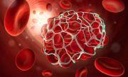 6-те най-ранни симптома на тромбозата
