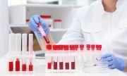 Лекарствата за разреждане на кръвта се оказват опасни