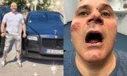 Жесток побой над мъж в Панагюрище, подозират местна мутра за престъплението