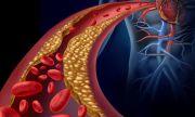 Неочаквани физически симптоми сигнализират за висок холестерол
